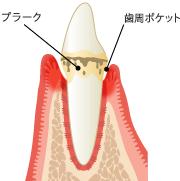 歯肉の病気